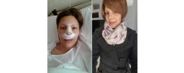 Testimonio Paciente Rinoplastia